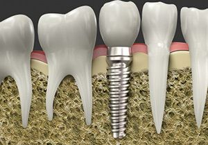 A dental implant placed in the jawbone next to natural teeth.