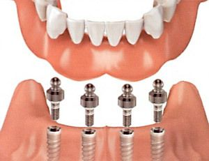 Lower dentures being placed on four dental implants.