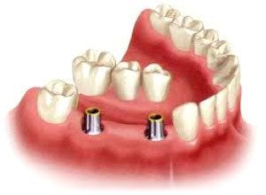 An implant-supported bridge bring lowered onto dental implants.
