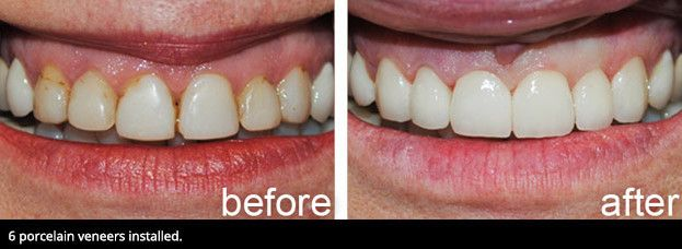 A smile before veneers and a smile after veneers.
