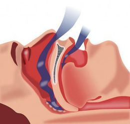 Air flowing into the airway during sleep.