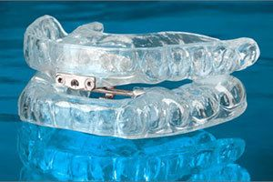 The TAP® oral appliance.