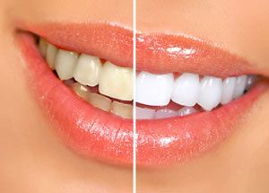A yellowed smile on the left and a whiter smile on the right.