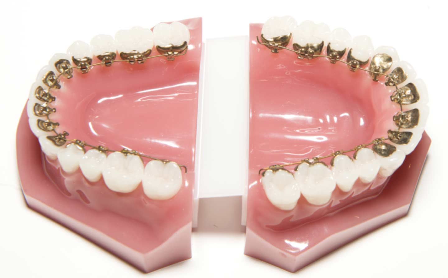 lingual braces on both arches