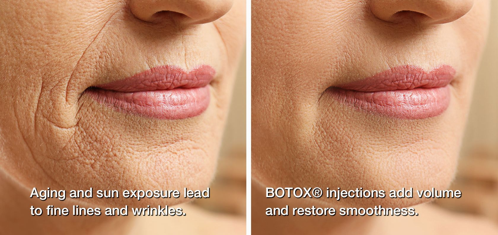 Woman's mouth before and after BOTOX injections