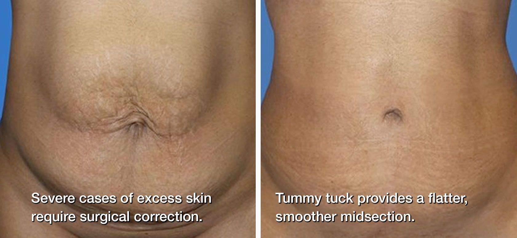 before/after tummy tuck