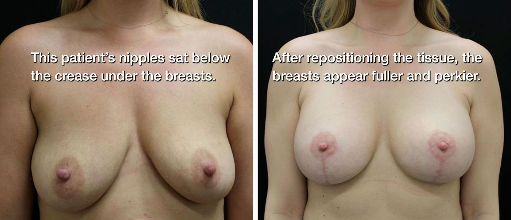 Breasts before and after lift