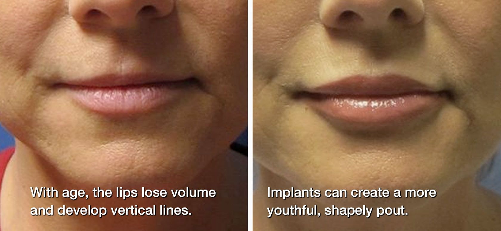 Before and after: lip implants