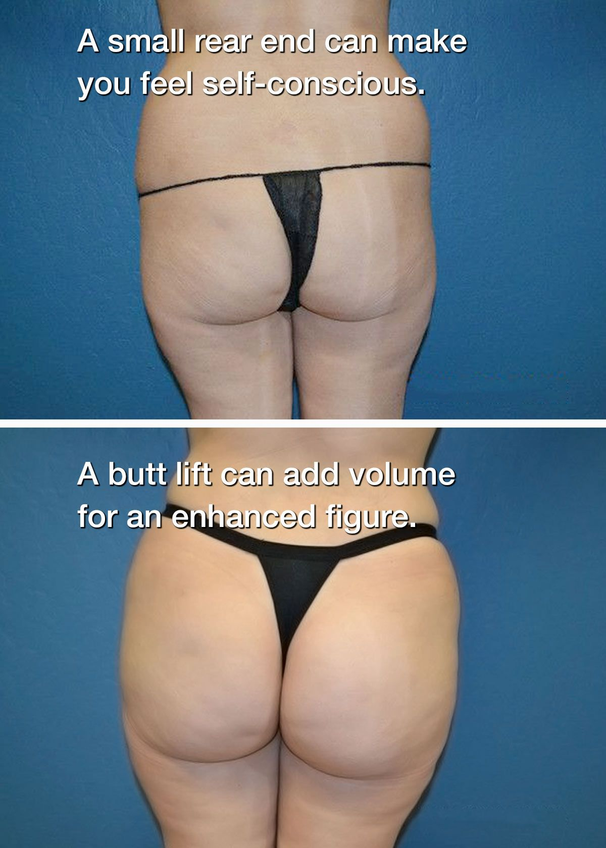 Before and after butt liftBefore and after
