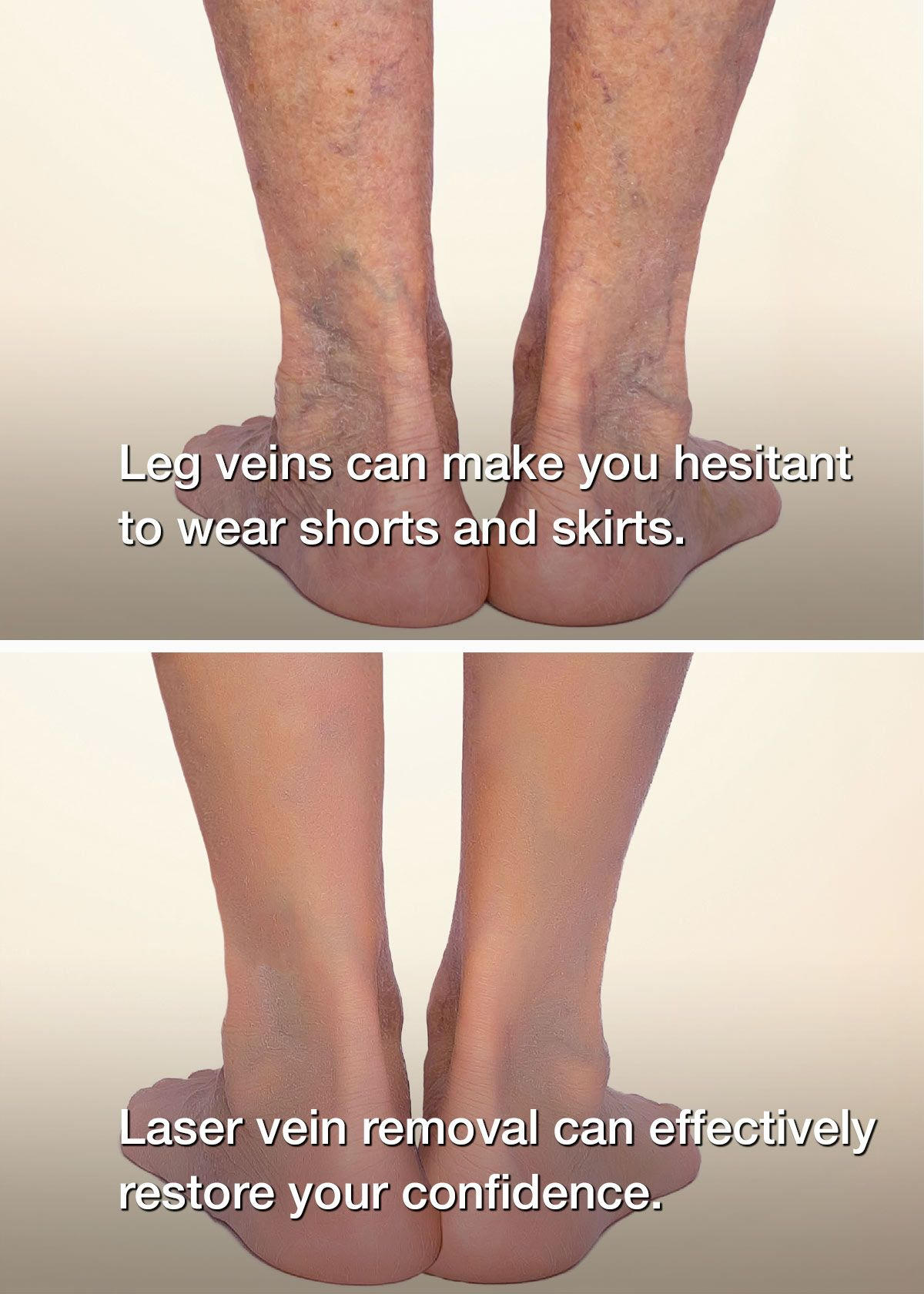 Before and after: legs with and without spider veins