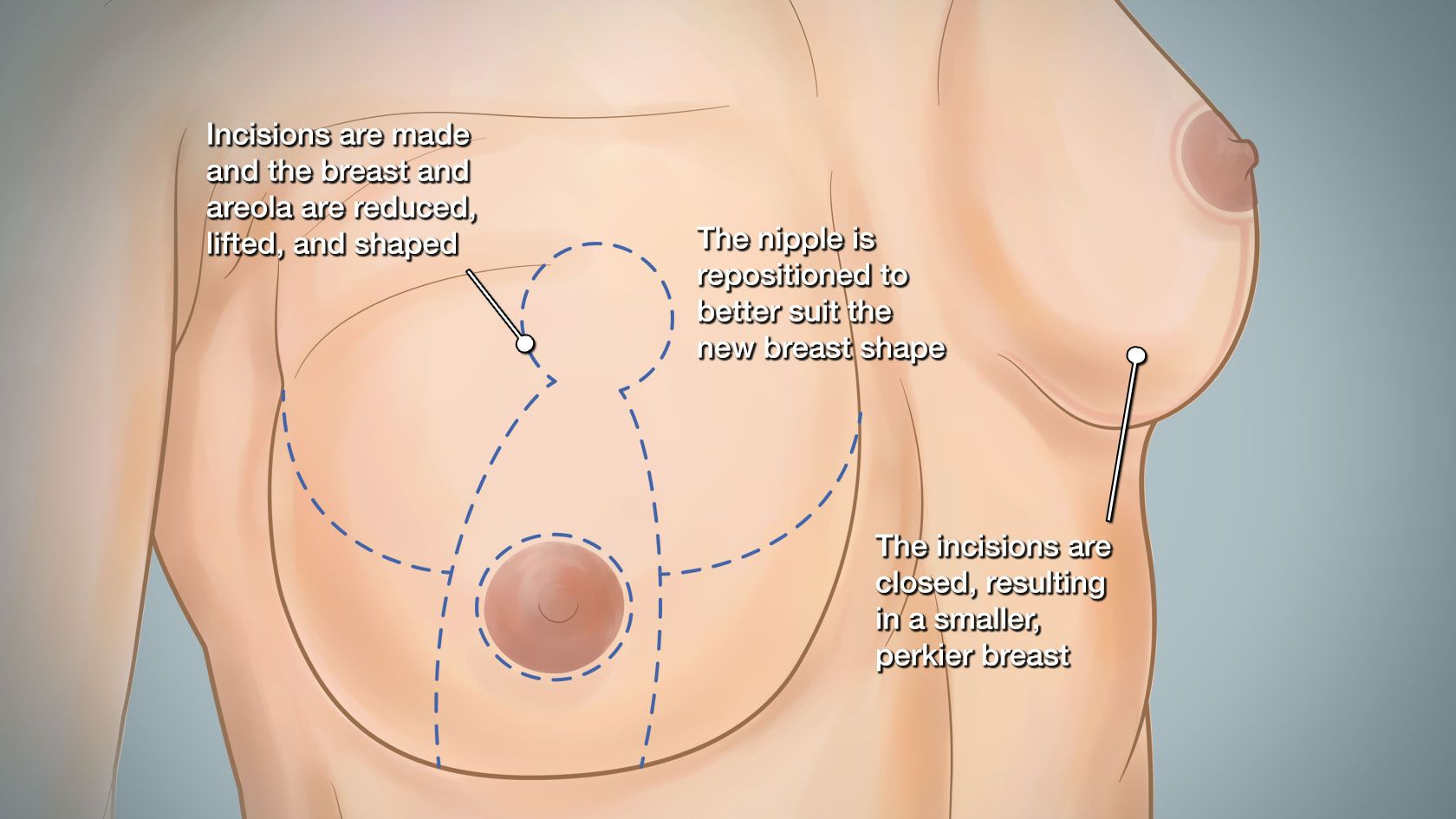Breast reduction illustration