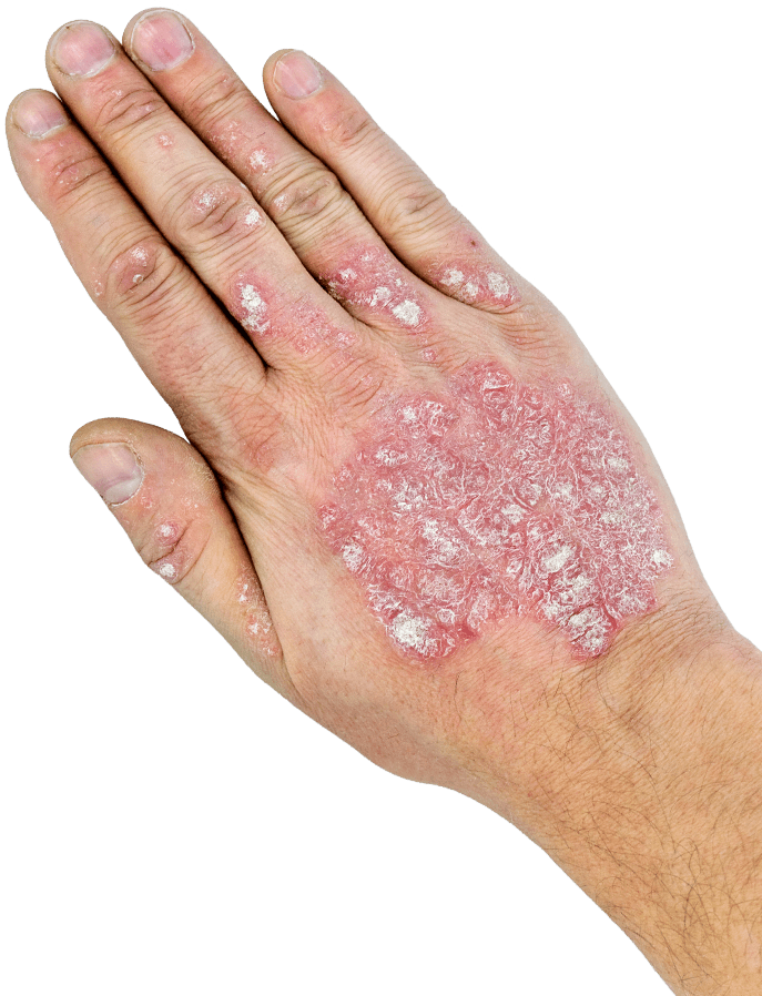 Back of a hand covered in psoriasis scales