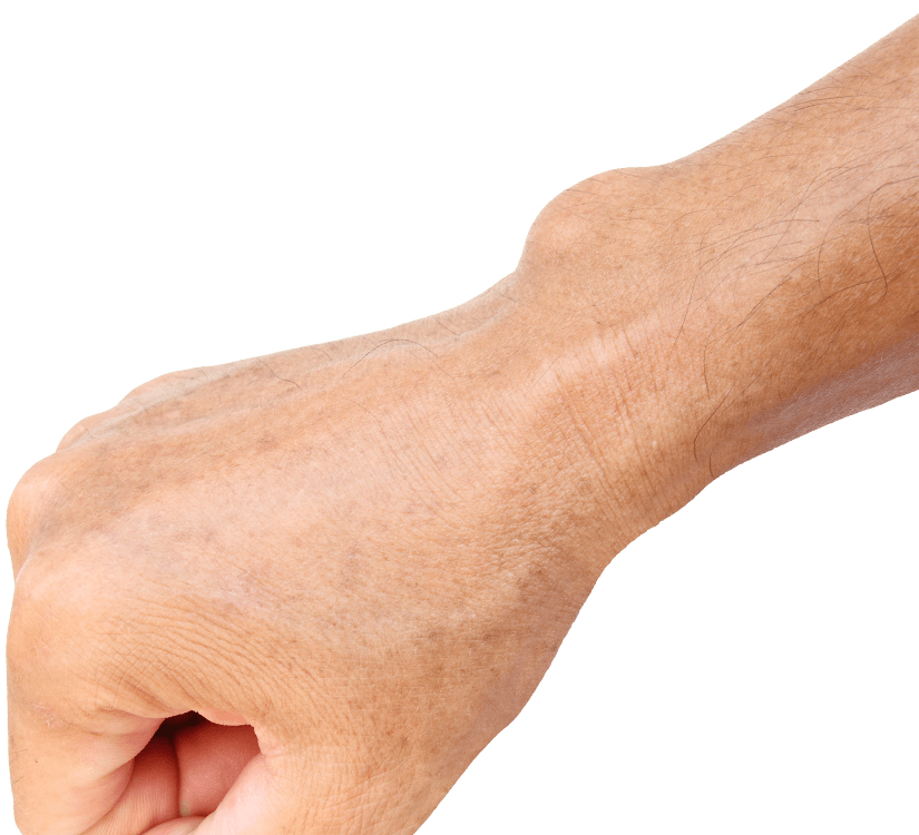 cyst on the wrist