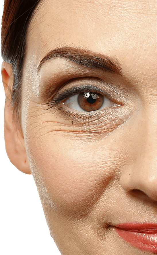 Woman with wrinkles around eyes