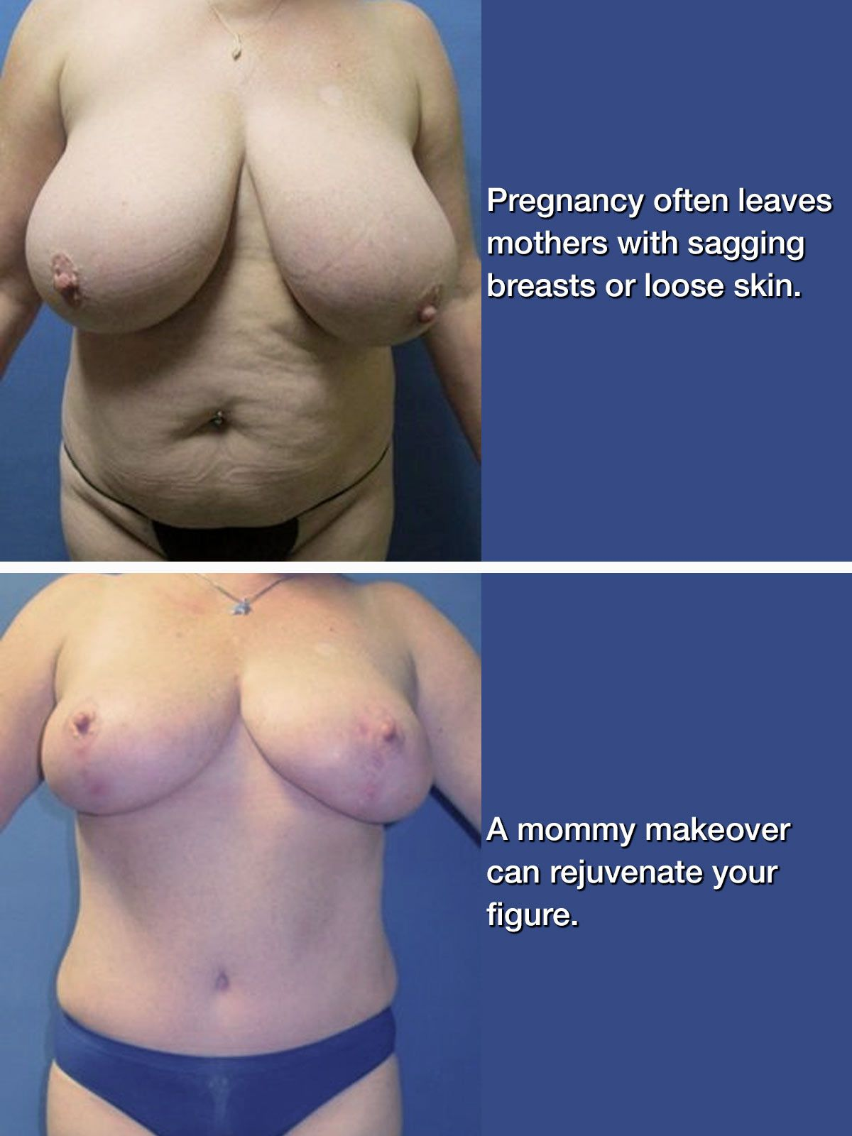 Woman's breasts before and after a mommy makeover procedure