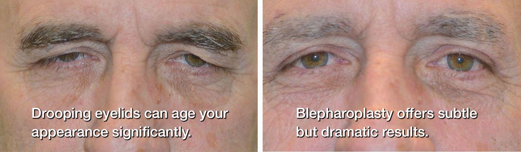 before/after blepharoplasty