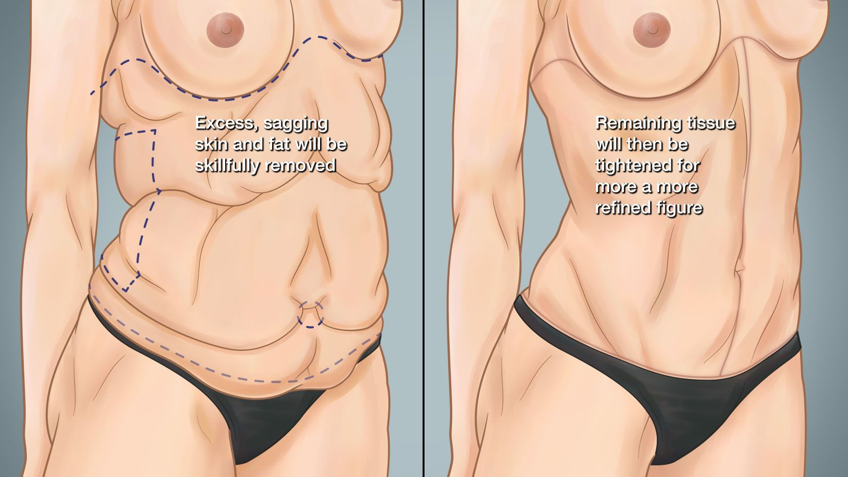 Illustration showing the potential of skin tightening after weight loss