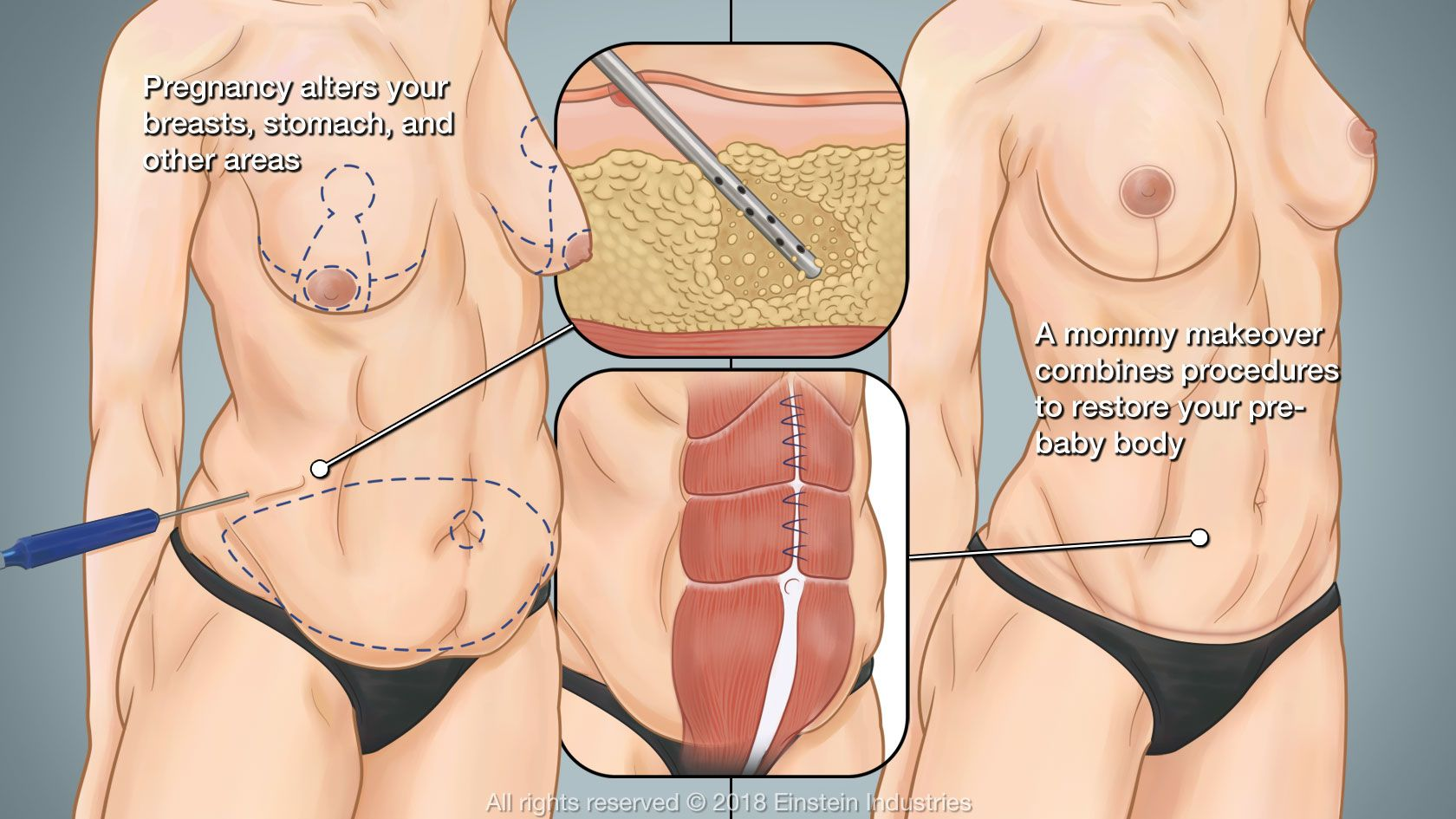 Illustration of body before and after a mommy makeover, with pull-out images of liposuction