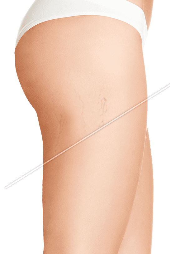 Legs with and without spider veins