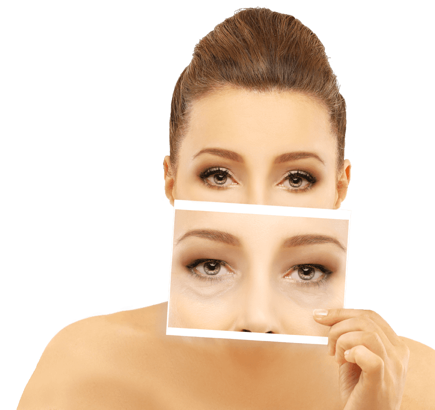 Eyelid Surgery Greenville, SC - Asheville, SC - Spartanburg, SC