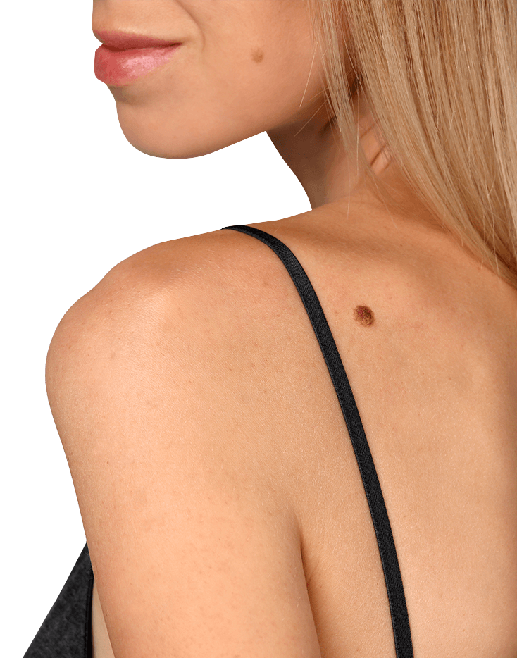 Mole on a woman's shoulder