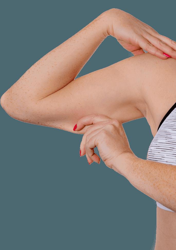 Woman pinching skin on upper arm