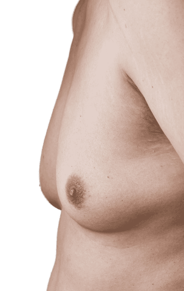 A male chest with excess breast tissue