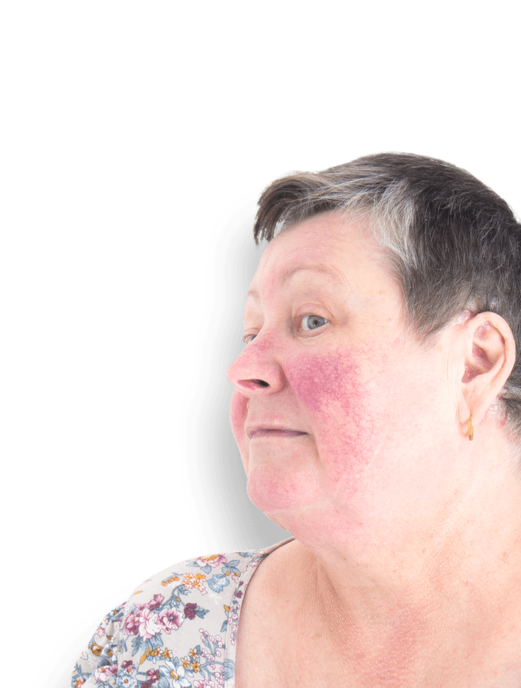 person with rosacea