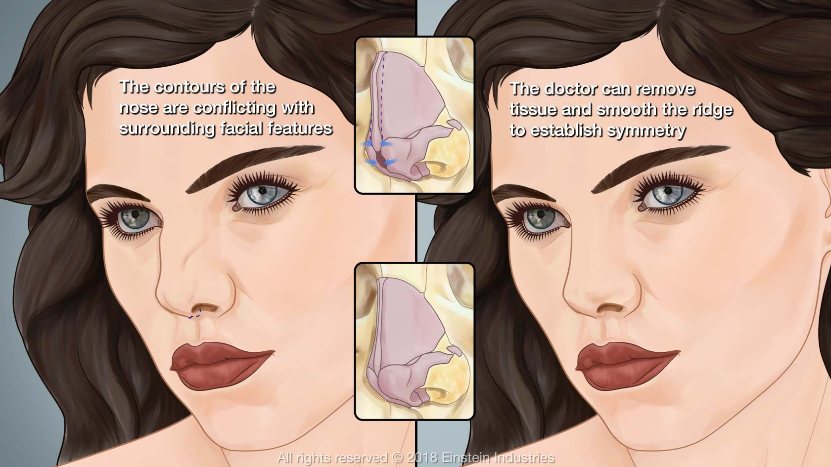 rhinoplasty illustration