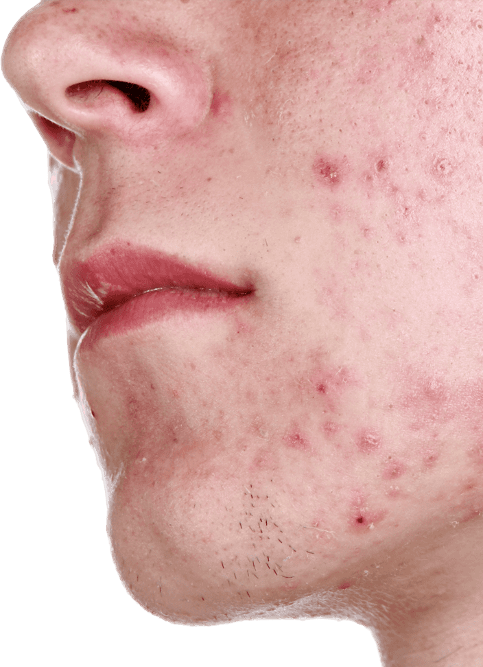 Close up of acne on man's chin