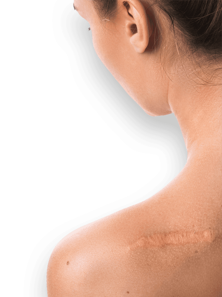Woman with scar on back of her shoulder