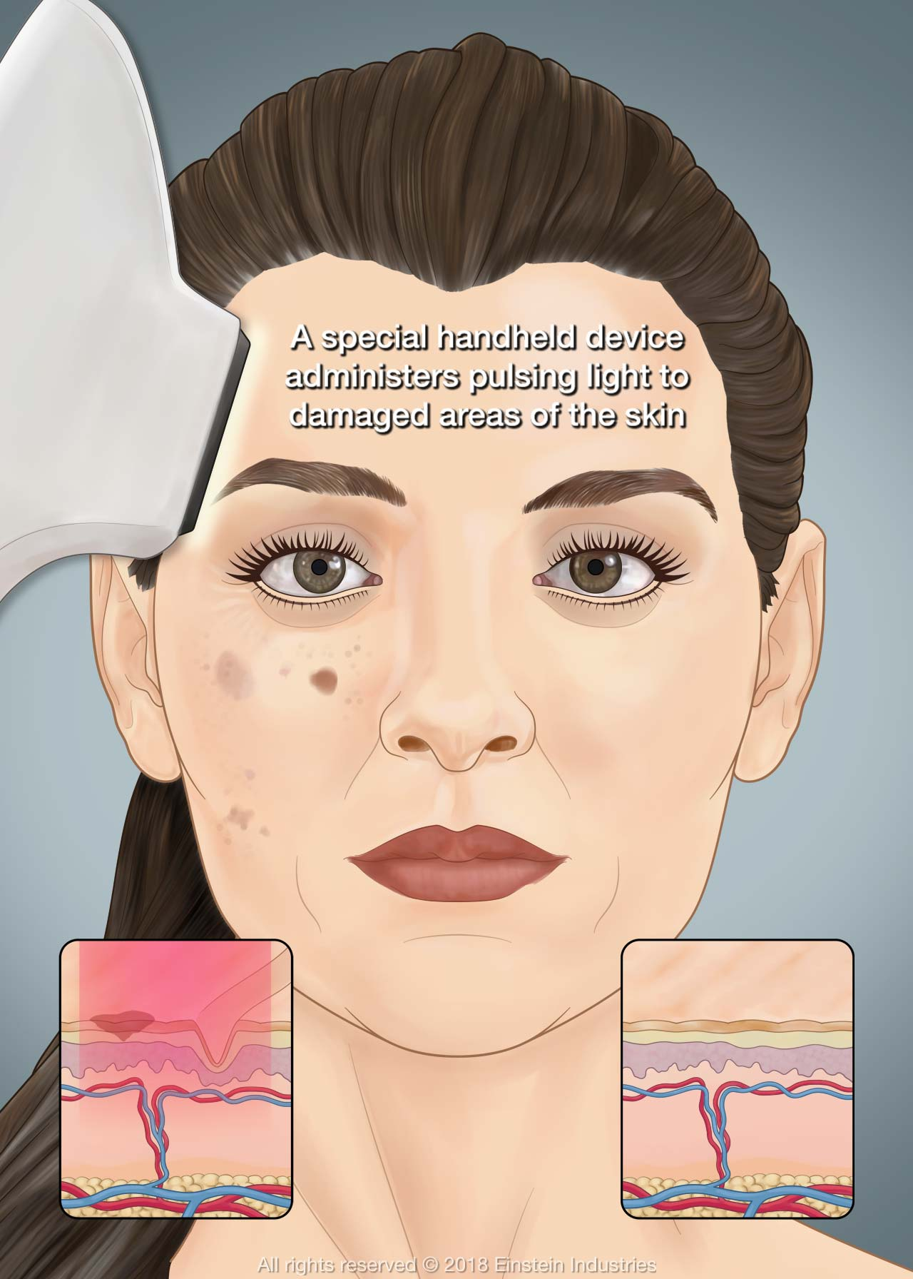 Illustration of woman with blemishes receiving IPL photofacial treatment. In background, the tissues below the skin are shown inflamed before treatment and normal afterward.