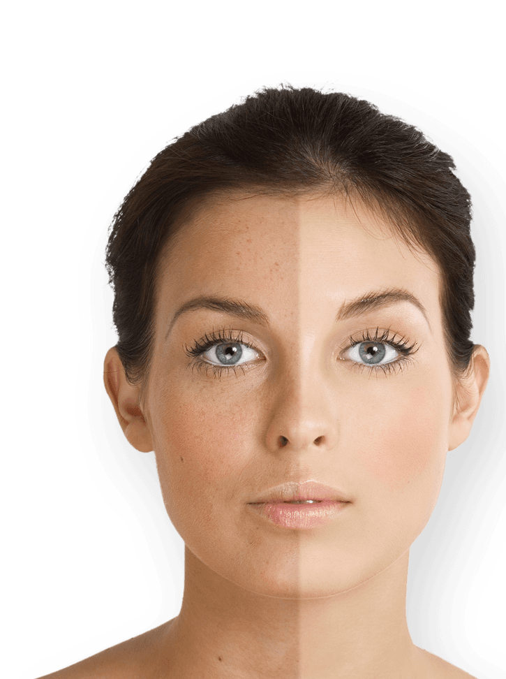 Woman with half of face covered in freckles and tan and other half of face pale and unblemished