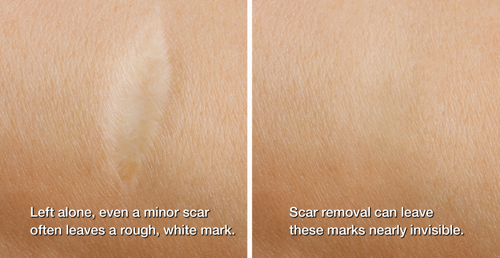 Left: Healed but visible scar. Right: Nearly invisible scar
