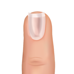 spoon-shaped nail