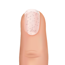 pitted nail