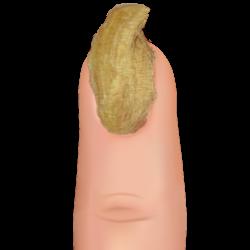 ram's horn nail