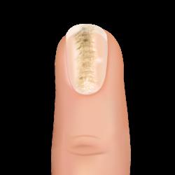 washboard nail
