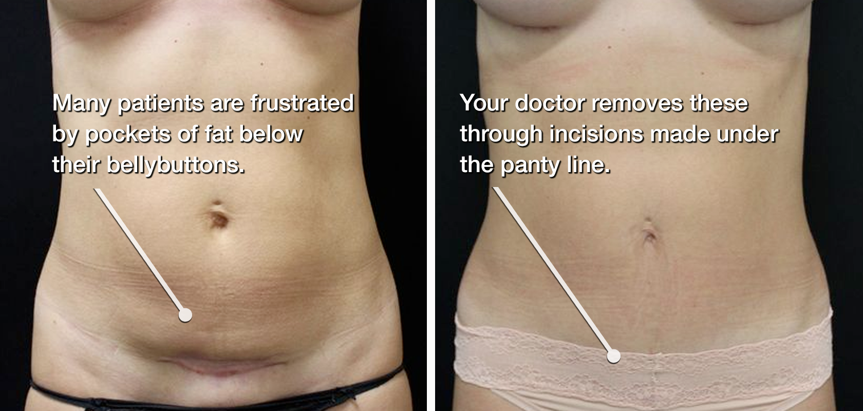 Before and after mini tummy tuck