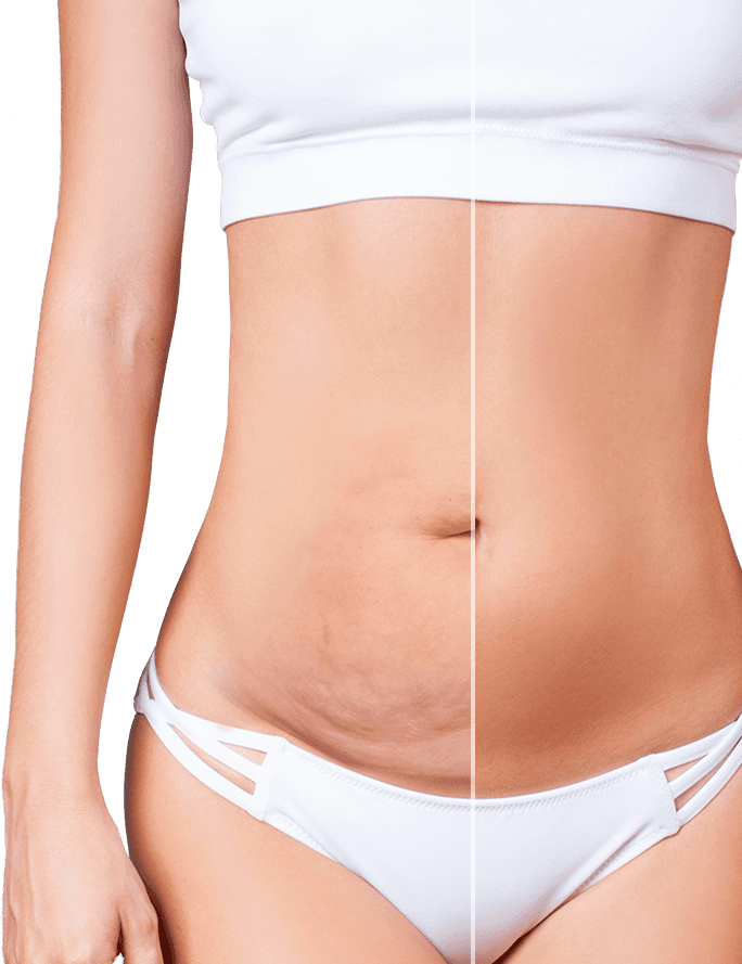 Woman's bare stomach
