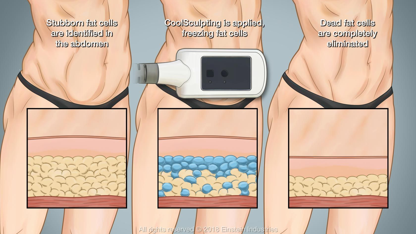 CoolSculpting® - Greenville, SC - Back to 30™