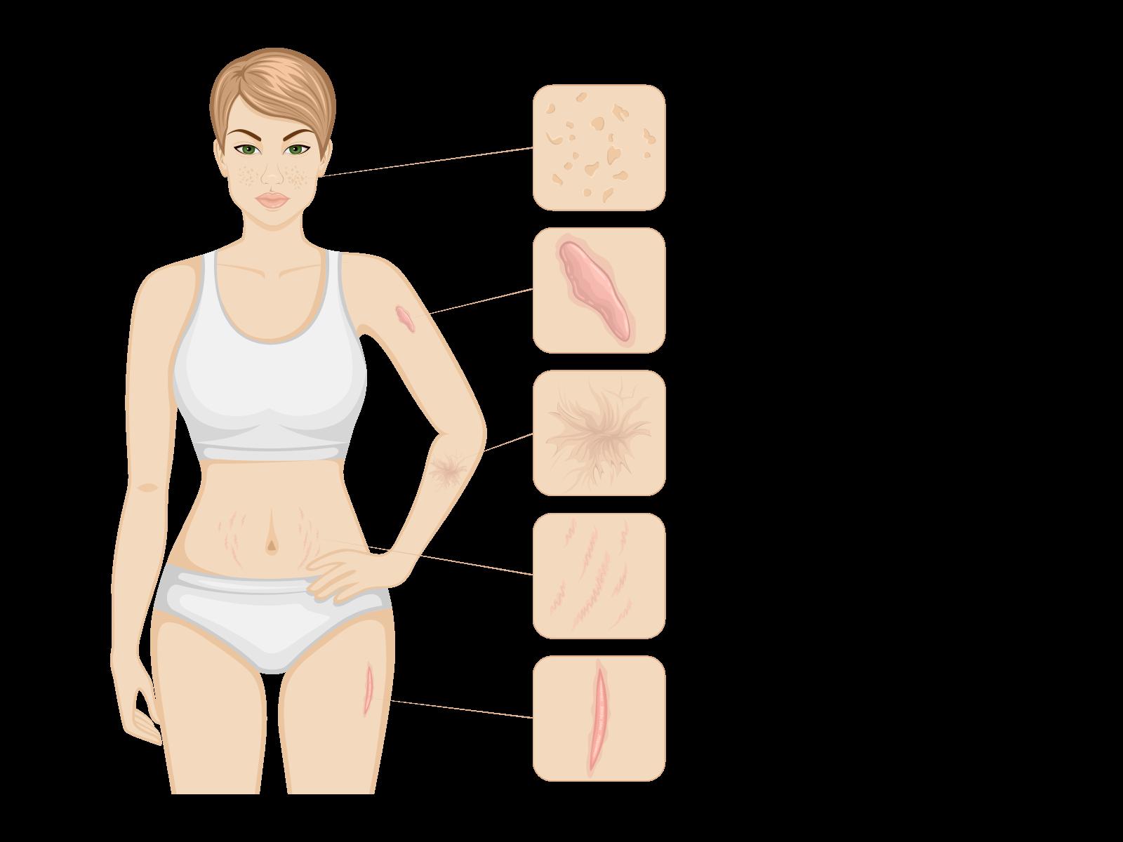 Illustration of different scar types