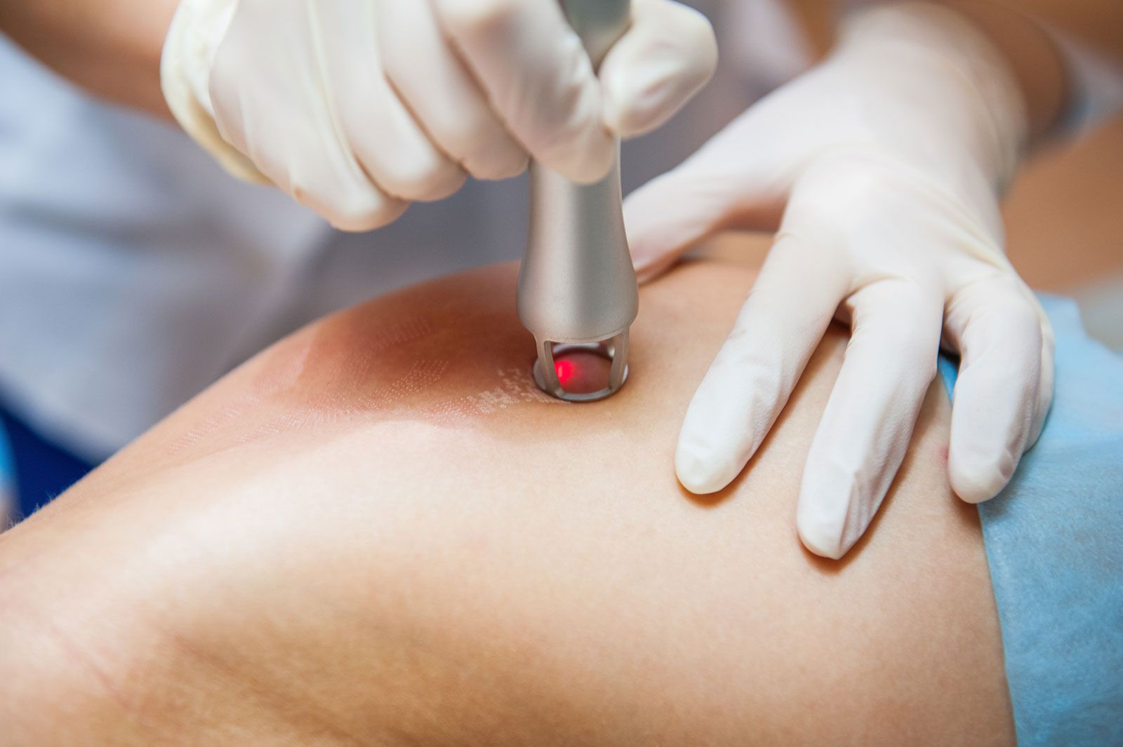 Close-up of laser scar removal