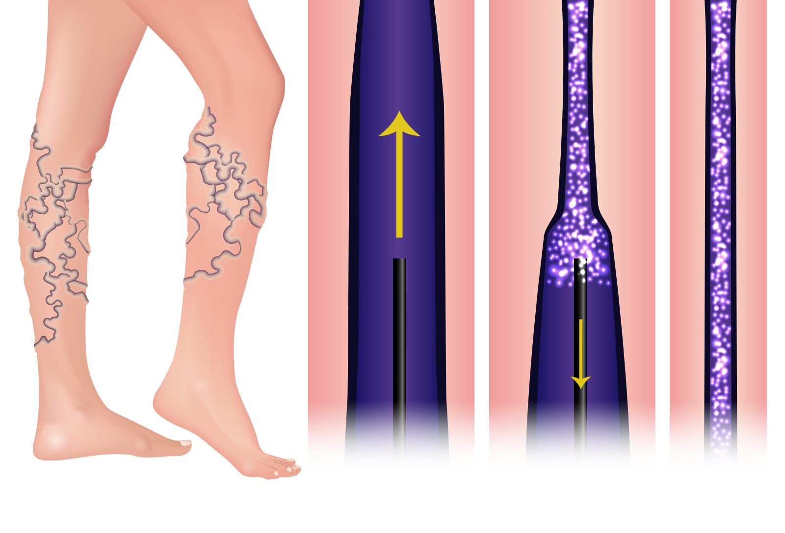 Illustration of sclerotherapy