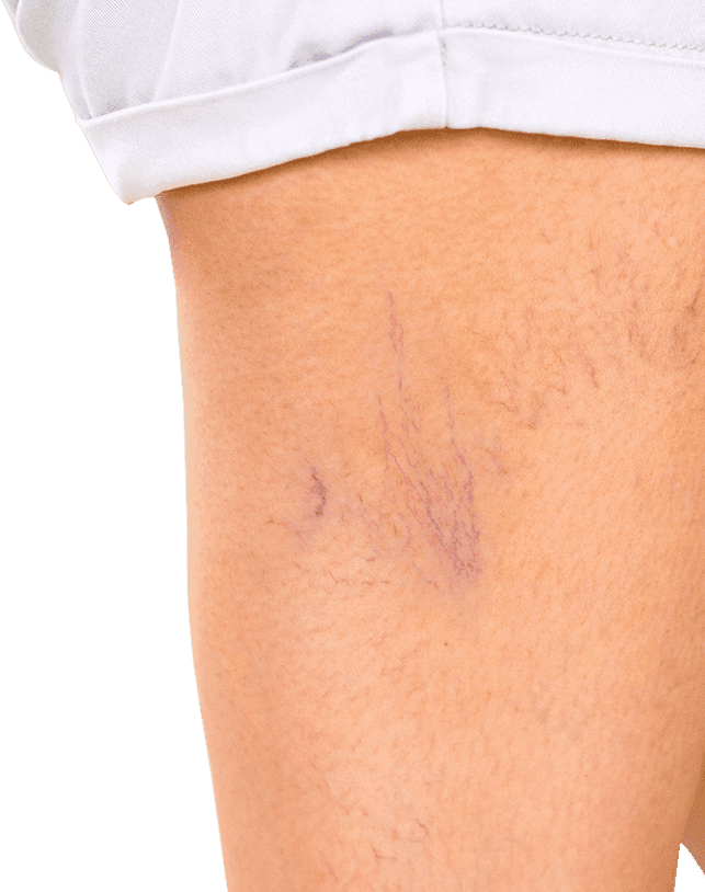 Spider veins on thigh