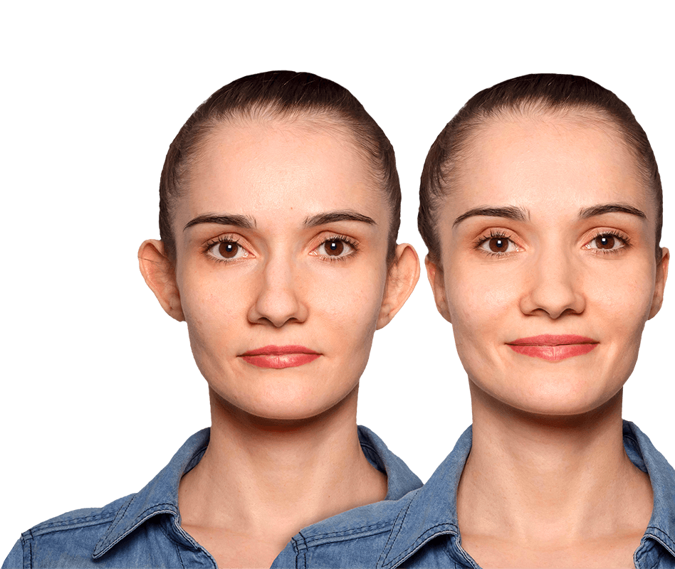 Woman before and after otoplasty