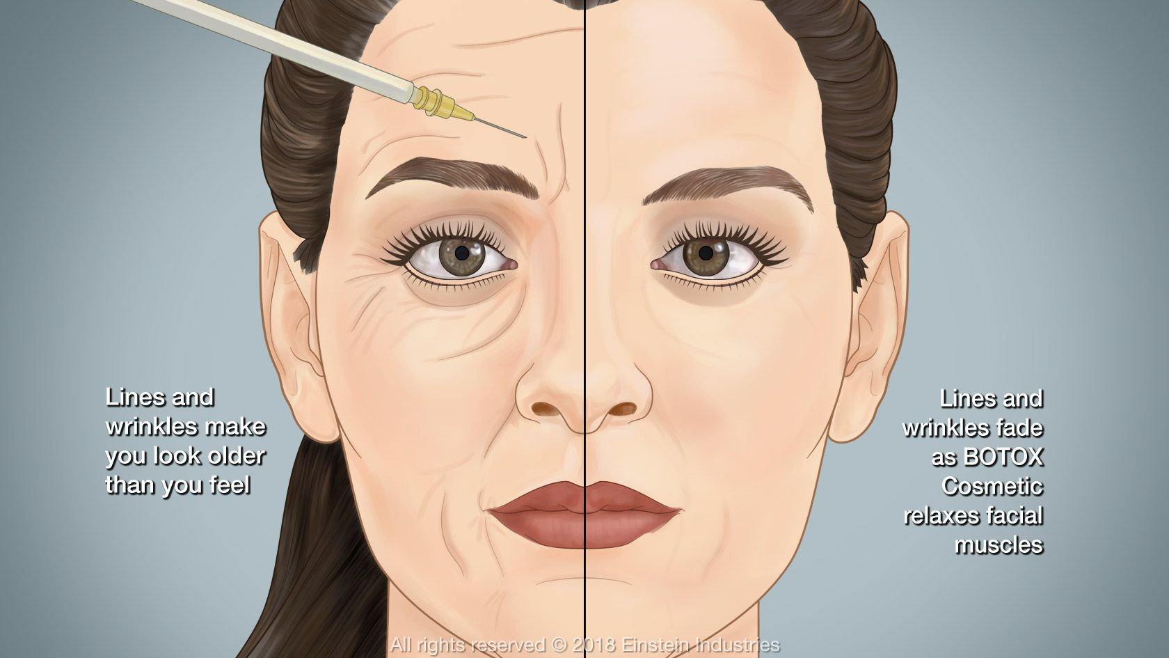 Illustration of before and after BOTOX treatment