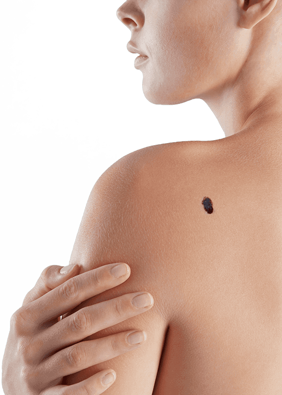 Woman with mole on shoulder blade