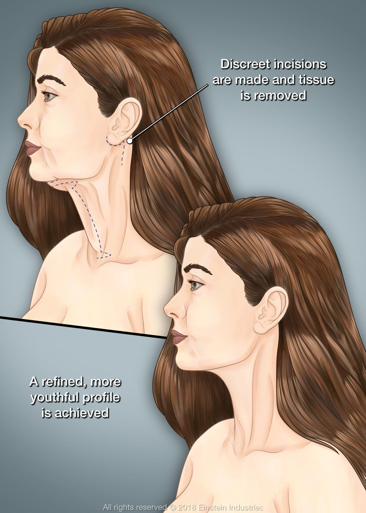 Woman before and after neck lift