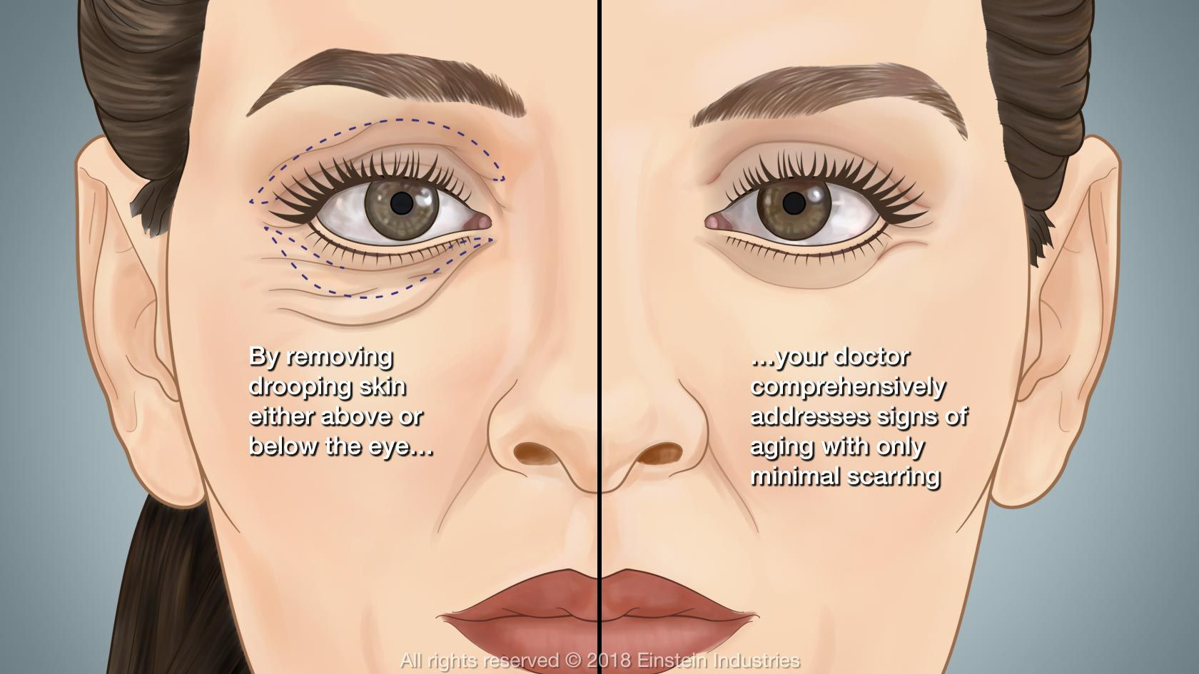 Woman before and after blepharoplasty